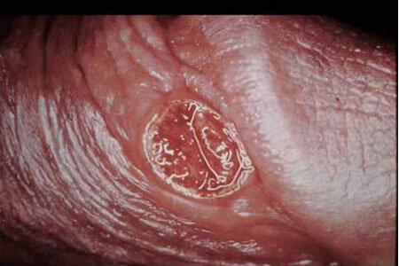 Biểu hiện của bệnh giang mai