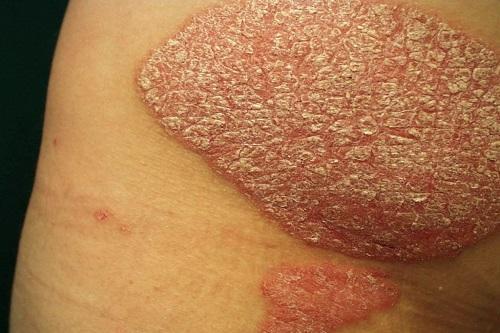Bệnh vảy nến có lây không? Triệu chứng của bệnh vảy nến