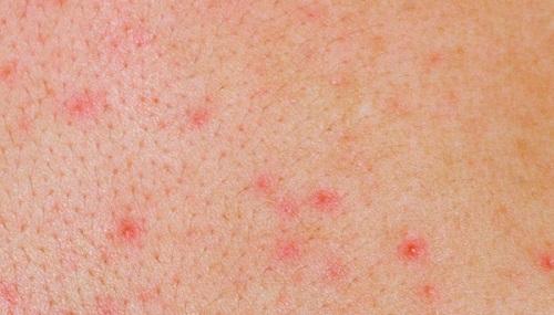 Bệnh viêm nang lông có nguyên nhân, triệu chứng thế nào?