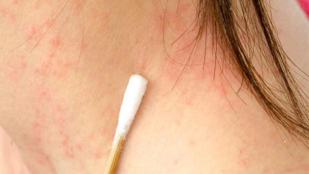 Một số bệnh da liễu thường gặp