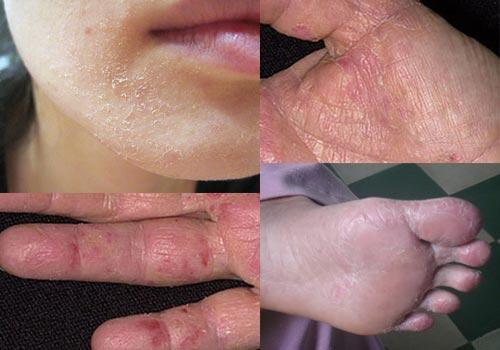 5 cách chữa bệnh chàm khô ở mặt, tay, chân hiệu quả