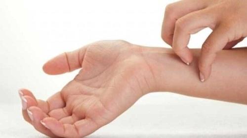 Nguyên nhân, cách chữa bệnh ngứa ngoài da