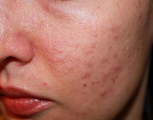 Viêm da dầu ở mặt là bệnh gì? Cách chữa viêm da dầu