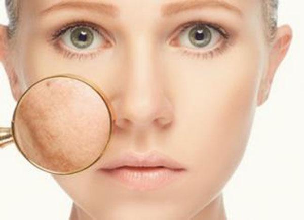 Tổng hợp các cách trị nám da mặt hiệu quả