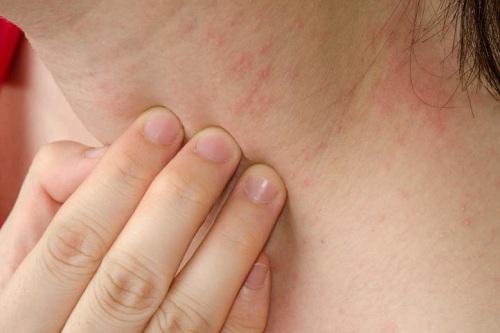 Các loại dị ứng da thường gặp, dị ứng da phải làm sao?