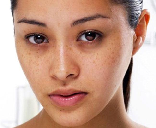 Điều trị đốm nâu trên da mặt cần chú ý gì?