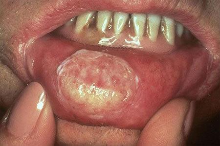 Bệnh giang mai ở miệng, biểu hiện và cách chữa