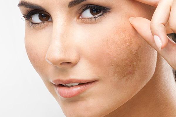 Bệnh nám da là gì? Những nguyên nhân chính gây bệnh nám da