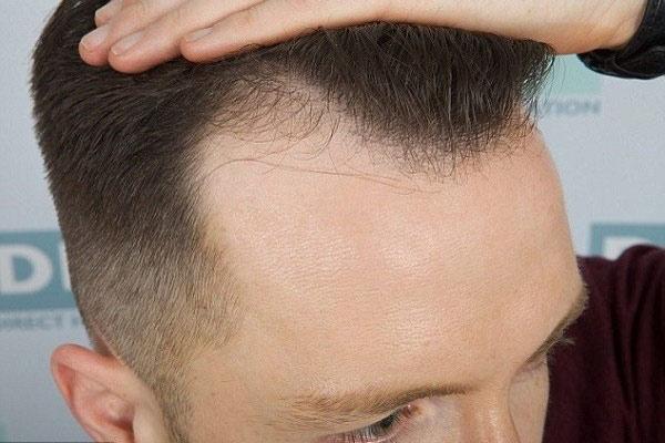 Rụng tóc ở nam giới nguyên nhân do đâu? Cách chữa rụng tóc ở nam giới